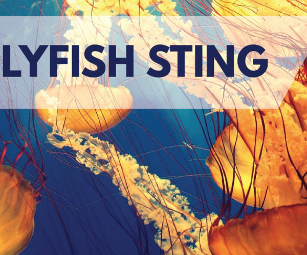 DOS AND DON'TS WHEN STUNG BY A JELLYFISH